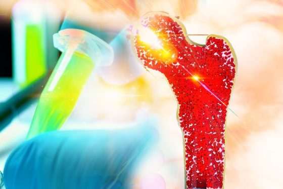 Long bone (femur) in red with a gloved hand holding an eppendorf of yellow fluid behind - idea of bone marrow cancer therapy development