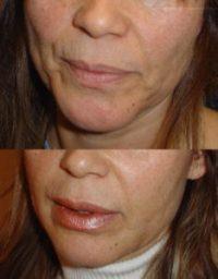 Dolgu, PRP, Cilt Bakımı, Botox birlikte kombine medikal estetik yüzde anti-aging