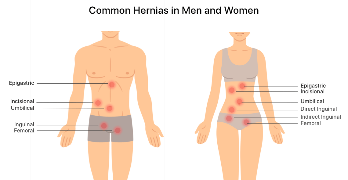 Hernia Mesh Pain Causes Symptoms And Treatment Options