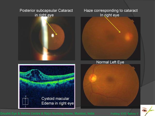Macular Vitrectomy Pucker