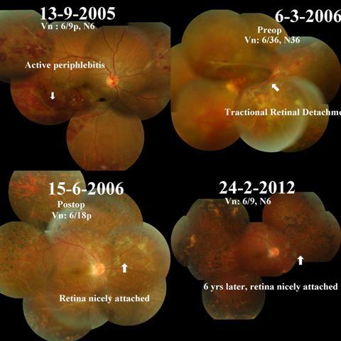 Drushti|Eye and Retina Center:-Eales Disease Treated With ...