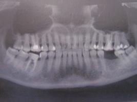 Le radiografie del dentista sono sicure e non provocano il tumore, le conferme dal Ministero della Salute – Il tuo dentista informa