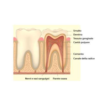 Demineralizzazione & remineralizzazione del dente