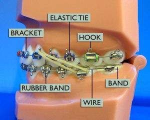 Braces Diagram | Wright Orthodontics Atlanta, Marietta, GA