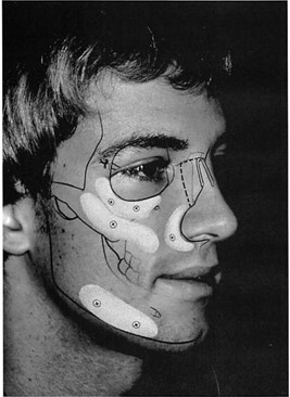 Facial Skeletal Reconstruction Using Porous Polyethylene