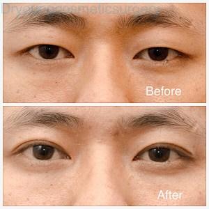 Double Eyelid Surgery - Oriental Blepharoplasty