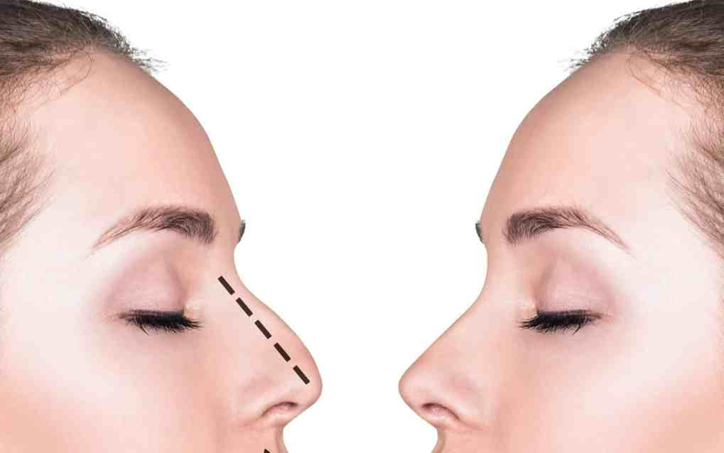 non surgical rhinoplasty hooked nose flat nose droopy tip 1 تصغير الأنف