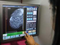 Bahia: mais de 20 mil mamografias neste Outubro Rosa