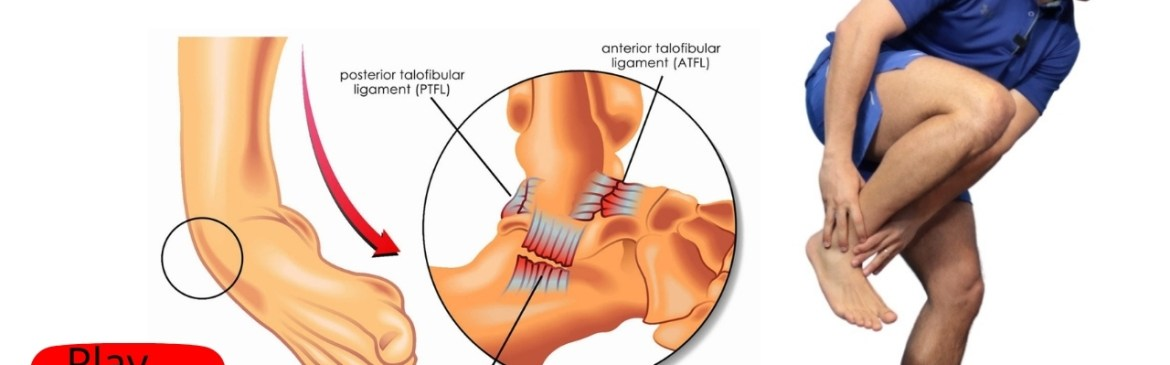Ankle Sprain teratment early stage