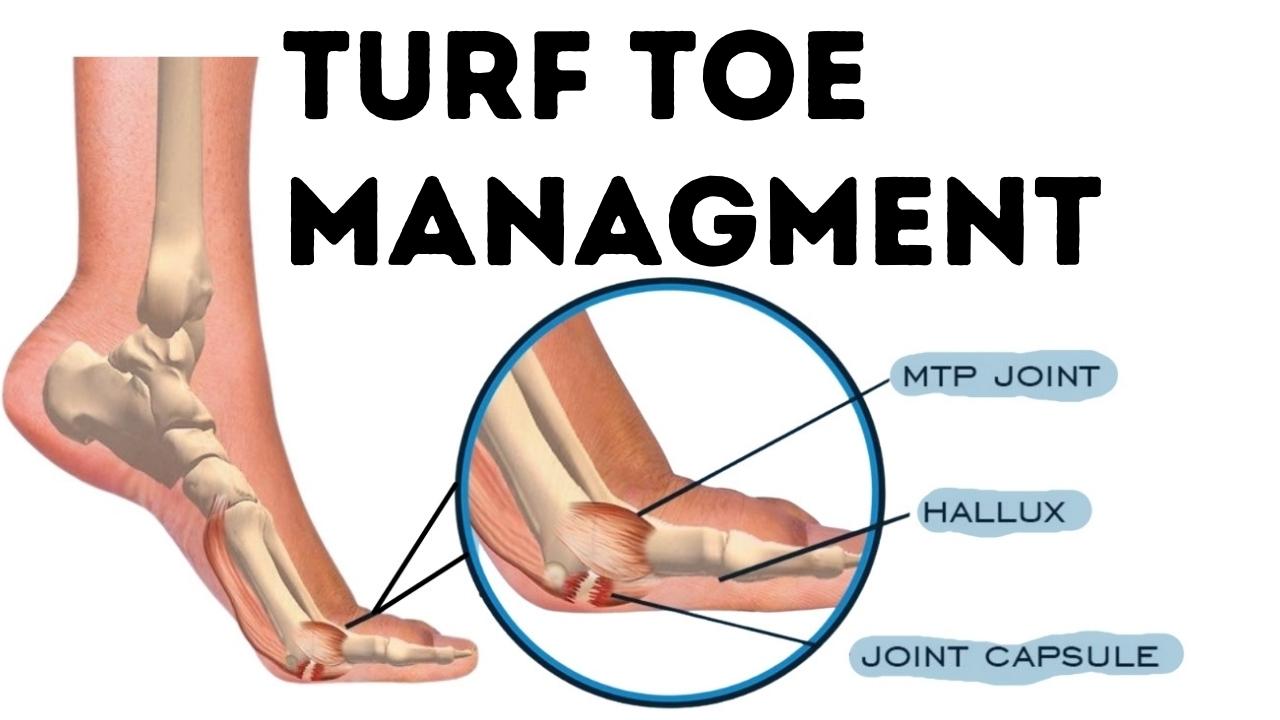 Turf Toe Managment