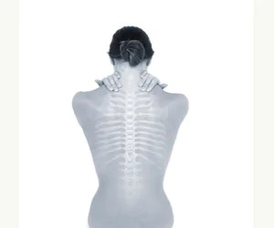 FREE SPINE AND POSTURE SCREENINGS IN PERTH