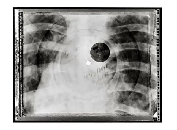 Bottenmuziek: Rock & Roll op röntgenfoto's