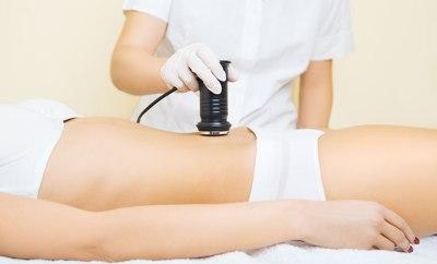 tratamiento cavitacion