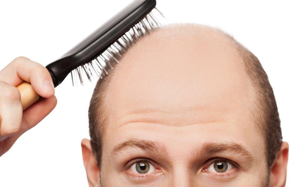 1426623972_new-cure-for-baldness-ftr