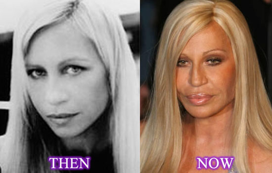 donatella-versace-plastic-surgery-before-after-photos