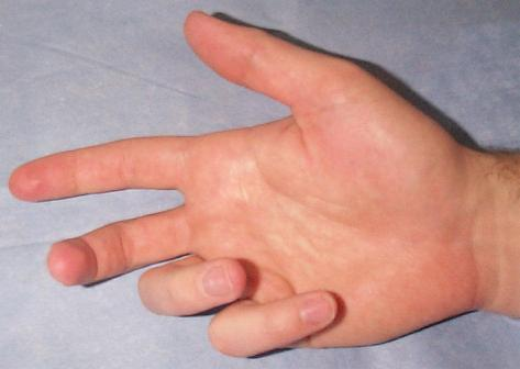 Dupuytrens contracture of the right hand, showing severe flexion deformity of the little and ring fingers, and moderate flexion deformity of the middle finger