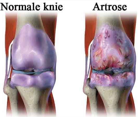 Meest voorkomende ziekte in Nederland is artrose