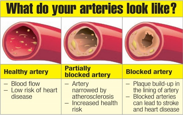 clean_your_arteries-600x600