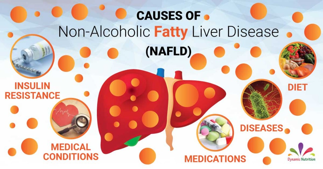 Causes of Fatty Liver (Nonalcoholic and Steatohepatitis)