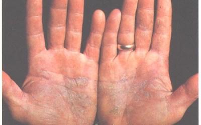 Penyakit Psoriasis: Simptom, Punca, dan Rawatan