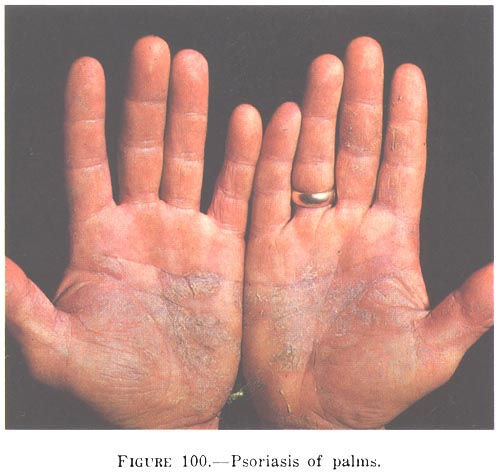 psoriasis on the palms
