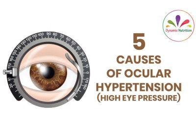 5 Causes of Ocular Hypertension