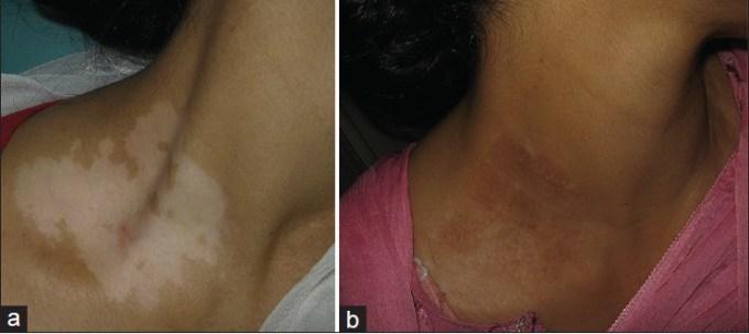 vitiligo light treatment side effects | Adiklight co