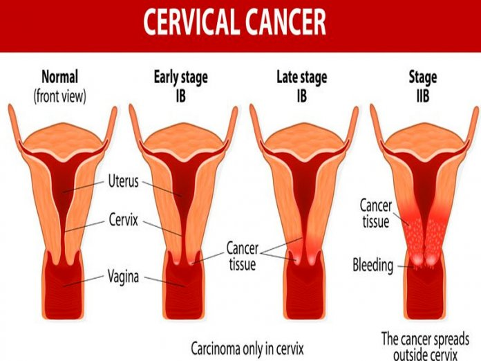 World Cancer Day: Oncologist Says Early Diagnosis Of Cancer Very Important