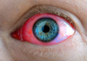 Ультрафиолетовые лучи невидимы для человеческого глаза, но они воздействуют на его сетчатые и роговые оболочки.