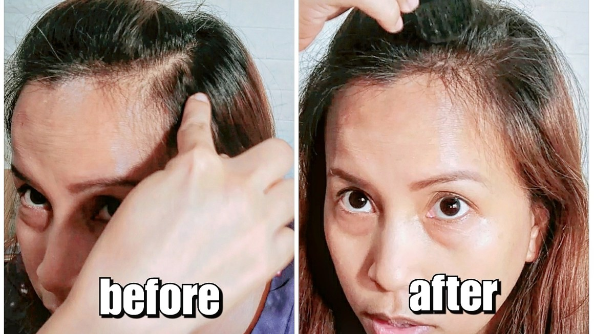 How to Conceal Your Gray Hair & Bald Spots Instantly
