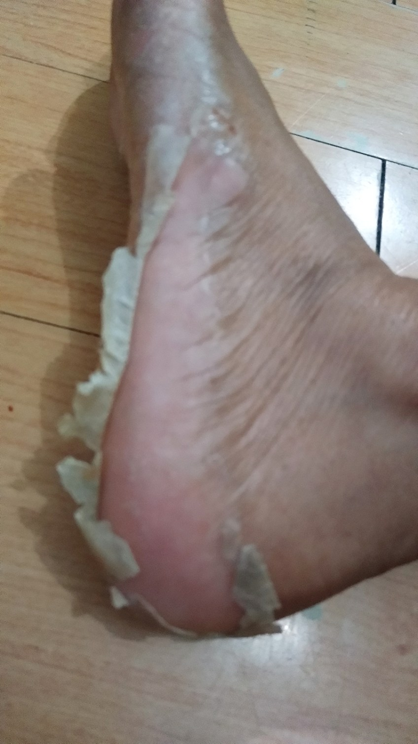 Baby Foot peel review