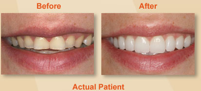 Dental Veneers Dentist East Berlin PA