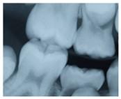Digital Dental Xrays East Berlin PA