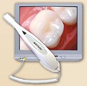 Intra Oral Dental Camera