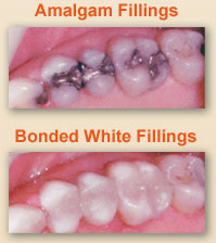 White Dental Fillings Dentist East Berlin PA