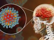 Doctors say coronavirus may cause strokes in young patients with no known risk for stroke