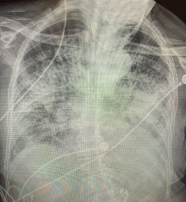The lungs look almost completely white after Coronavirus recovery
