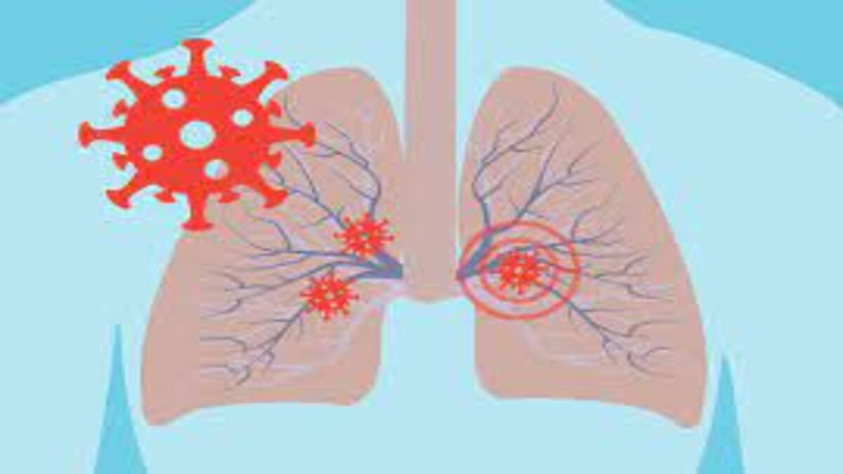 COVID-19 may not impair lung function in young adults:
