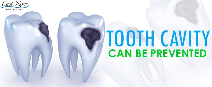 Can Cavities Be Prevented - East River Dental Care - Newmarket - Ontario - Canada