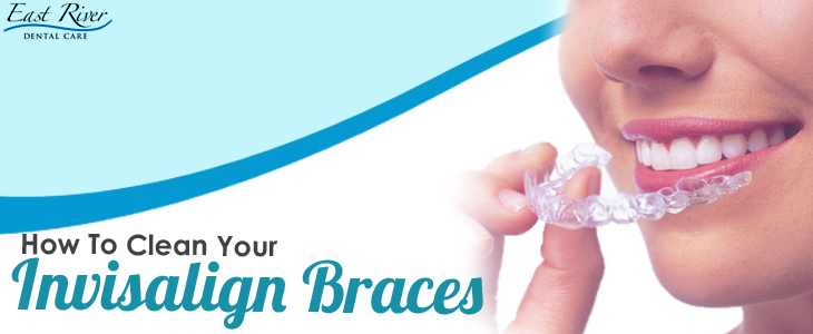 How To Clean Invisalign Braces?