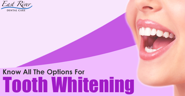 Know All The Options for Teeth Whitening