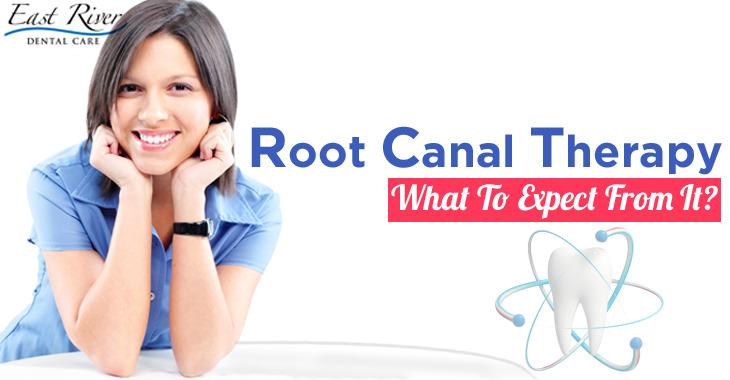 Root Canal Therapy – What To Expect?