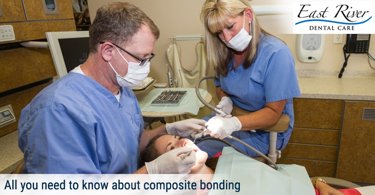 All you need to know about composite bonding