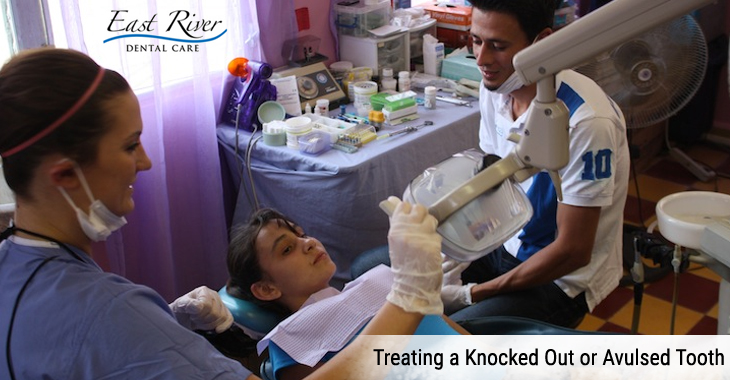 Treating a Knocked Out or Avulsed Tooth