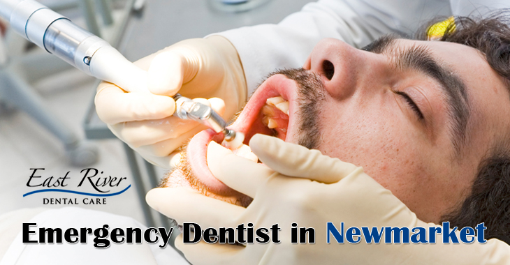 When to Call An Emergency Dentist