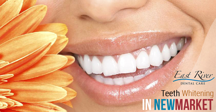 Is Visiting a Teeth Whitening Clinic Worth My Time?