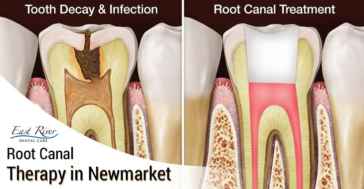 Home Remedies for Root Canal Pain