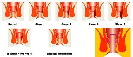 stages of hemorrhoids
