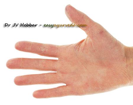eczema of palm