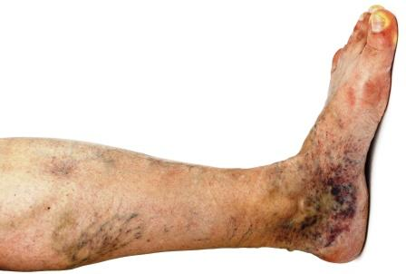 Varicose veins in foot and leg